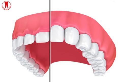 Điều trị cười hở lợi