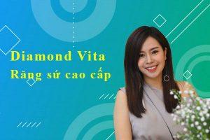Diamond Vita rang su cao cap