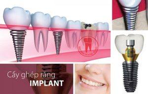 bang gia cay ghep implant