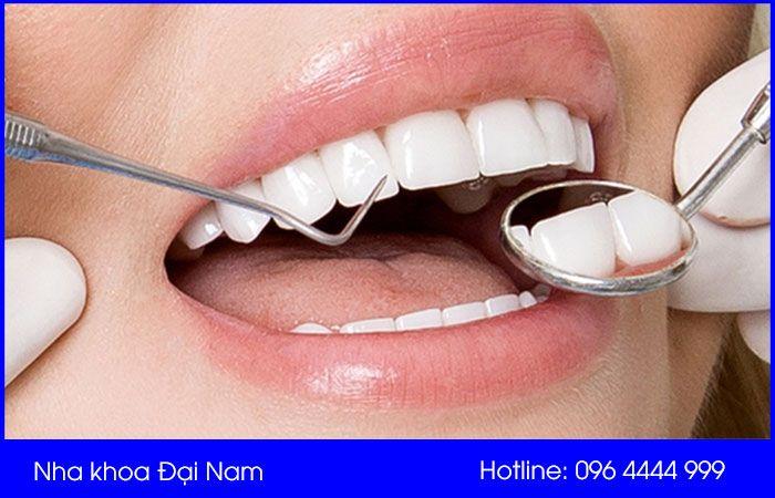 cách chăm sóc răng sứ để có tuổi thọ lâu nhất