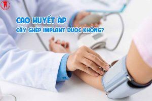 cao huyet ap cay ghep implant duoc khong