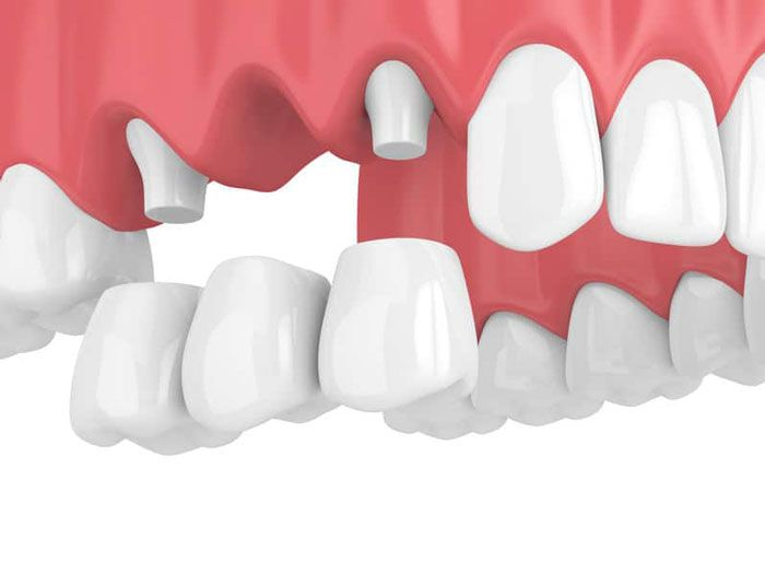 cầu răng sứ tại nha khoa đại nam
