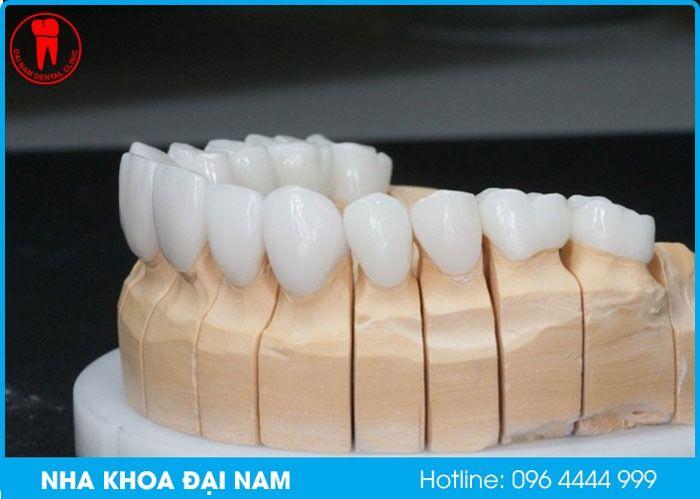 cấu tạo răng sứ cercon