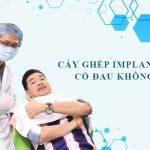 cay ghep implant co dau khong