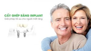 cay ghep rang implant