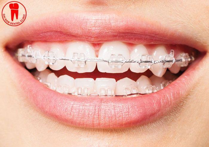 Chi phí niềng răng hết bao nhiêu