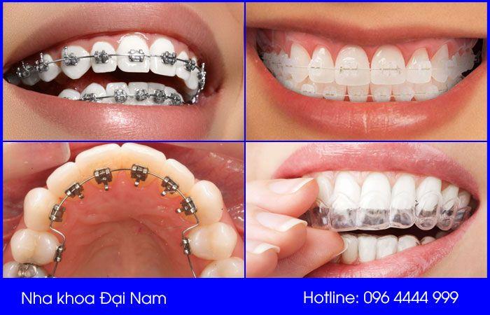 chi phí niềng răng phụ thuộc vào phương pháp niềng