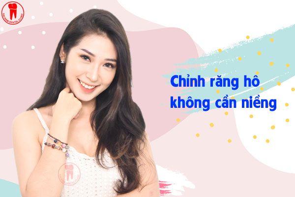 chinh rang ho khong can nieng
