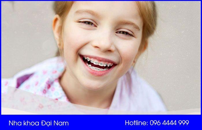 độ tuổi ảnh hưởng đến chi phí niềng răng