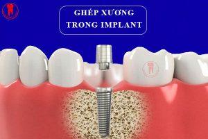 ghep xuong trong implant