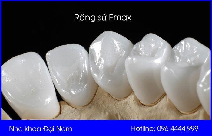 hình ảnh răng sứ emax