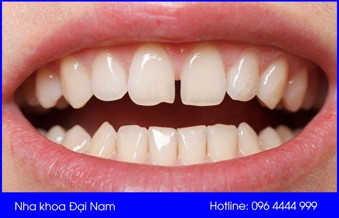 hình ảnh răng thưa