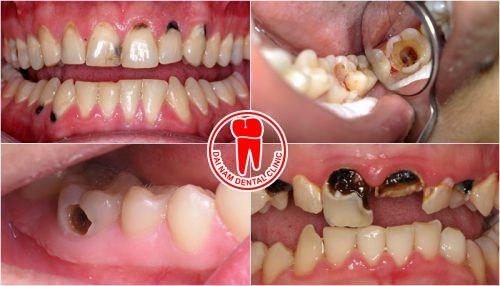 hinh răng xấu
