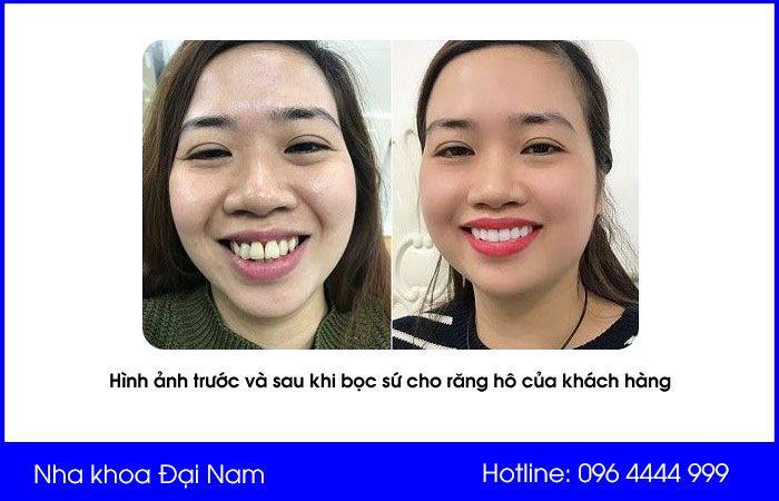hình ảnh trước và sau khi bọc sứ cho răng hô