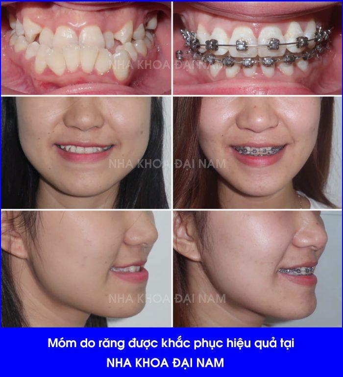 hình ảnh trước và sau khi niềng răng móm