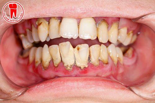 hình ảnh vôi răng