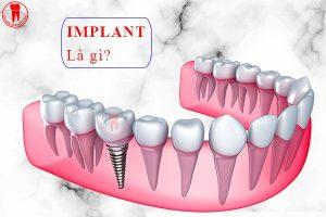 implant la gi