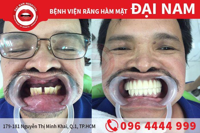 kh cay ghep implant