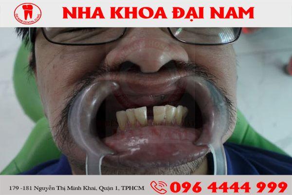 khach hang tai dai nam 5