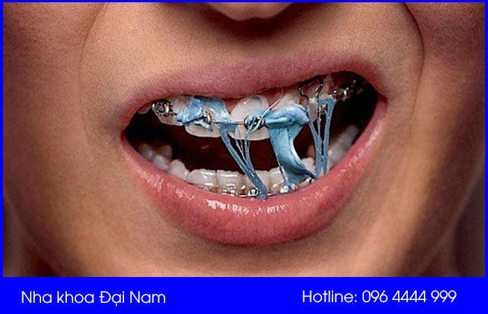 khi niềng răng không nên nhai kẹo cao su