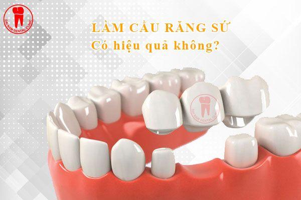 lam cầu răng sứ