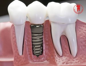 lam implant gia bao nhieu