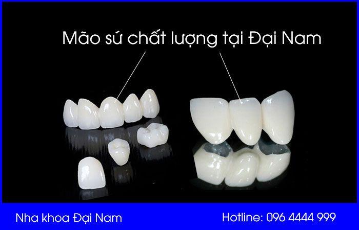 mão sứ rất quan trọng khi bắc cầu răng sứ
