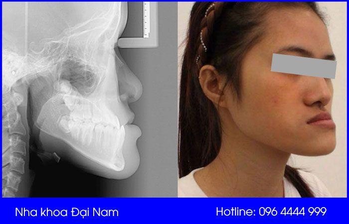 móm do hàm không thể thực hiện phương pháp niềng răng