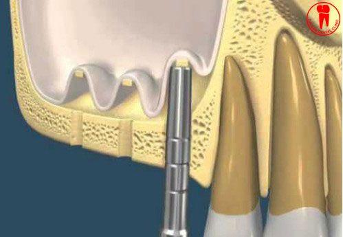 nang xoang cay implant