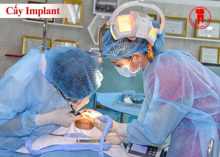 nha khoa cay ghep rang implant