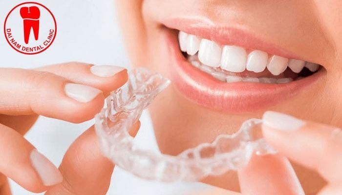 Niềng răng bao nhiêu tiền tại tphcm