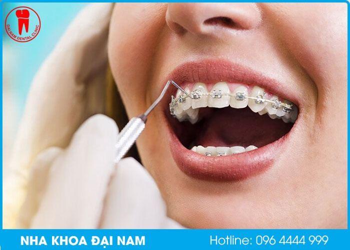 Niềng răng không nhổ răng có hiệu quả không?