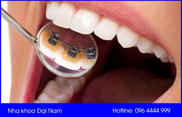 niềng răng mắc cài mặt trong giá bao nhiêu