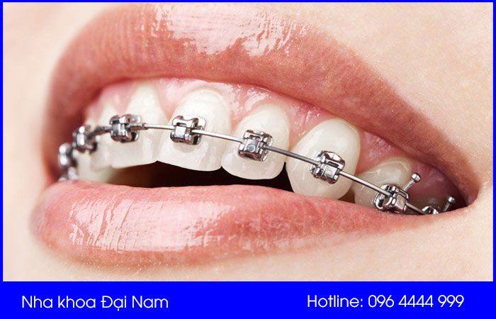 niềng răng mắc cài tự động có tính thẩm mỹ cao