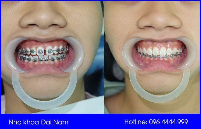 niềng răng thưa hiệu quả tại nha khoa đại nam