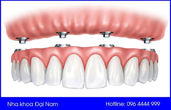 răng sinh học trên implant