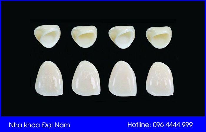 răng sứ venus có tuổi thọ cao