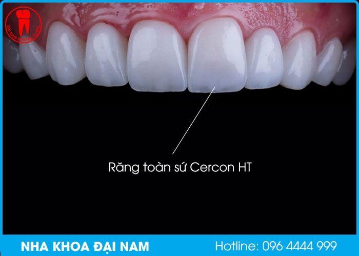 Răng toàn sứ Cercon HT
