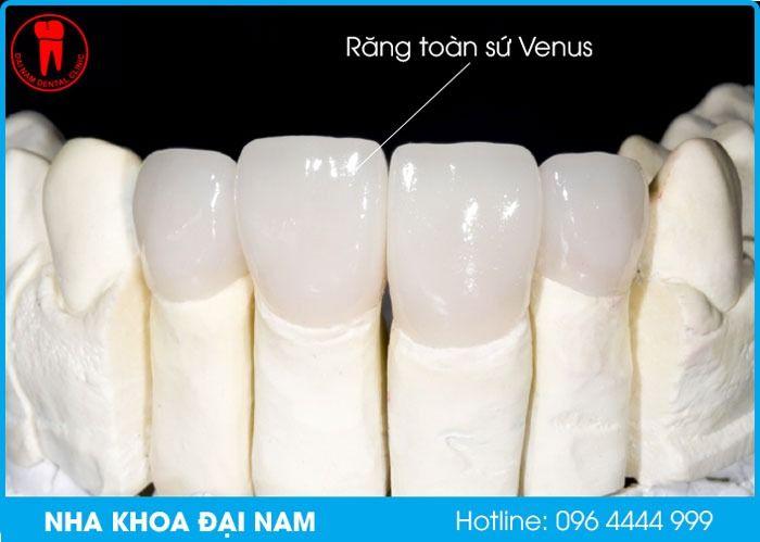 răng toàn sứ venus