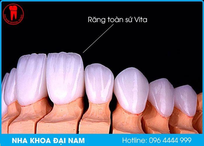Răng toàn sứ Vita