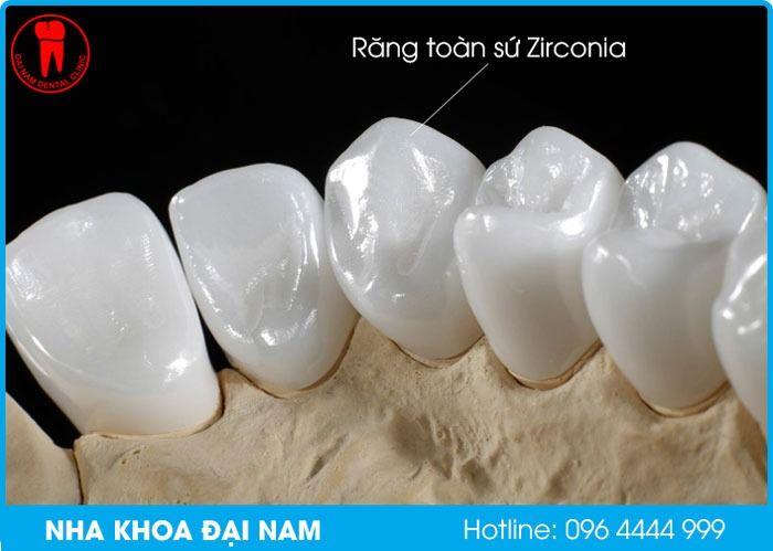răng toàn sứ zirconia