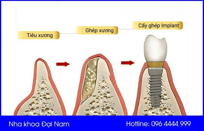 tại sao cần cấy ghép xương trong implant