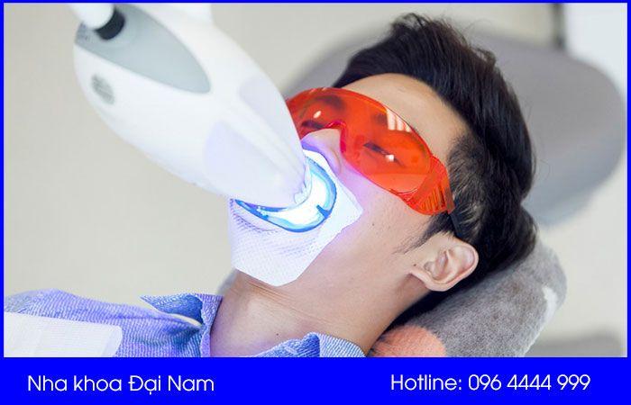 tẩy trắng răng hiệu quả tại nha khoa đại nam