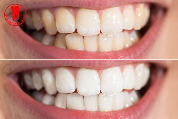 trám men răng không tốt bằng phương pháp bọc răng sứ