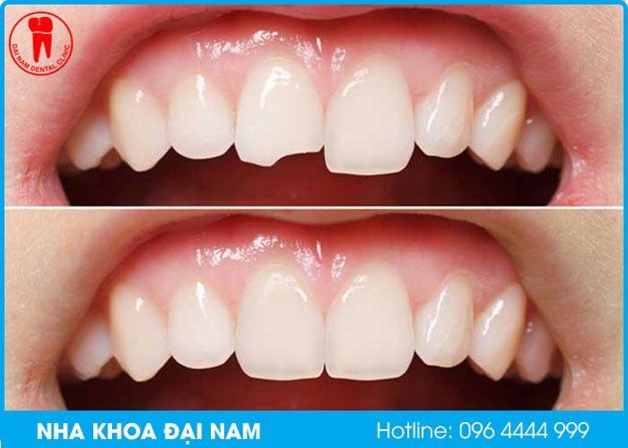 trám răng composite cho răng cửa