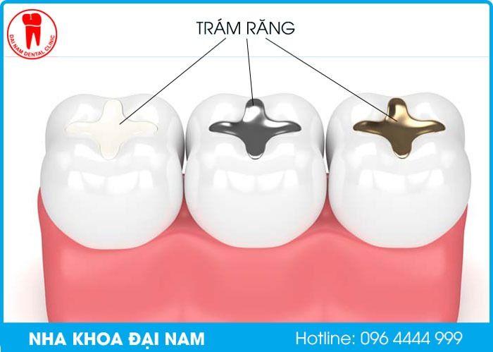 trám răng là gì
