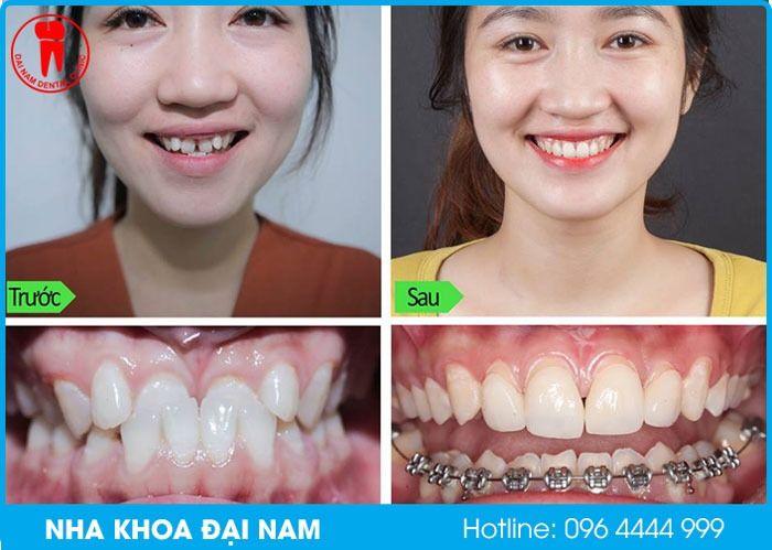 trường hợp không cần nhổ răng khi niềng vẫn hiệu quả