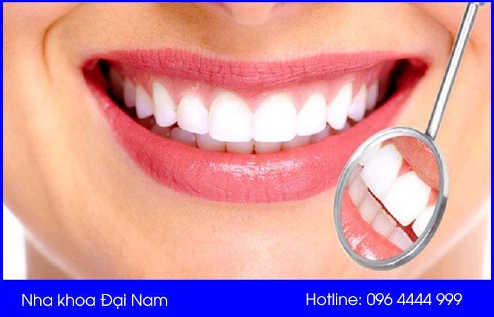 tuổi thọ của răng sứ là bao lâu