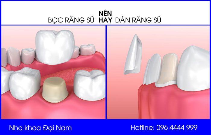 so sánh nên bọc răng sứ hay dán răng sứ