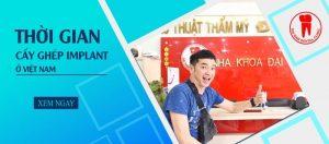 thời gian cấy ghép implant ở Việt Nam